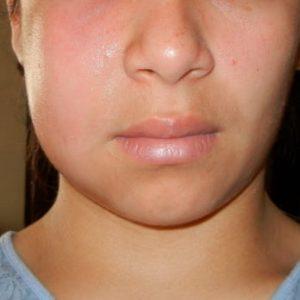 abscess-facial-swelling