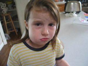abscess-facial-swelling-girl