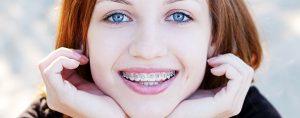 girl-with-braces-604x238