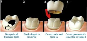 lost-crown-crowning-process