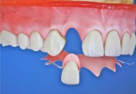 lost-crown-temp-denture