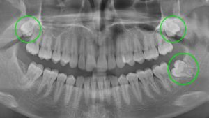 opg-wisdom-tooth-circled1516-x-856