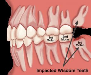 wisdom-teeth-side-jaw-500x414