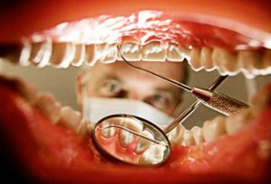 dentist-looking-inside-mouth