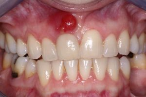 swelling-sinus-21