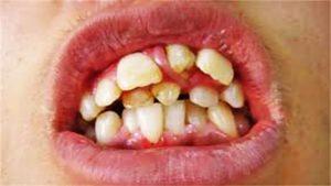too-many-teeth1280x720