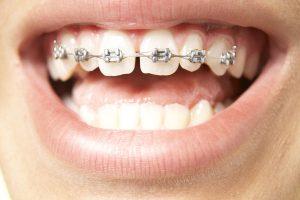 top-braces-600x400